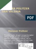 Manuver Politzer Dan Valsava