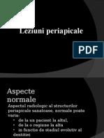_08_leziuni_periapicale