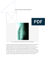 Osteosarcoma y Citologa.docx