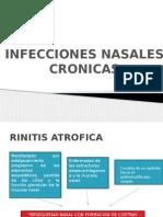 Procesos Infecciosos Cronica de La Nariz