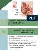 Tumor Carcinoide Apéndice Cecal1