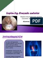 Lesión Lig Cruzado Anterior Modificada 2
