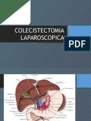 dieta postoperatorio vesicula laparoscopia pdf