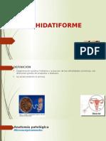 Mola Hidatiforme - Copia