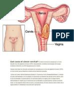 cancer del cuello uterino.docx