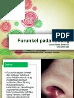 SSS - Furunkel Pada Hidung