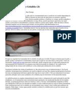 Article   Tratamiento Celulitis (3)