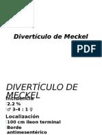 Diverticulo de Meckel