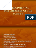 Developmental Disturbances of the Tongue