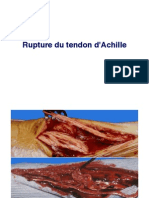 Tendon d'Achille