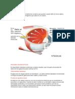 12-PAciente Con Glaucoma