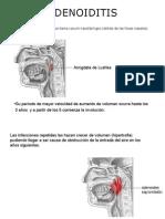 Adenoididitis