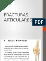 FRACTURAS ARTICULARES