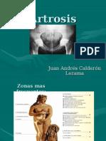 Tema 1 Artrosis