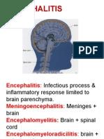 encephlitis-131217215744-phpapp02