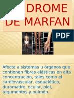 Sindrome de Marfan2