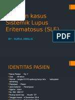 SLE - lupus