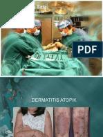 Dermatitis Atopik ppt