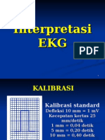 Interpretasi Ekg n