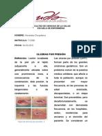 Ulceras Por Presion Deber Miercoles