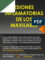Lesiones Inflamatorias de Los Maxilares