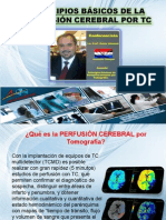 Perfusion Cerebral Cascavel