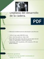 Displasia Del Desarrollo de La Cadera. MEMO