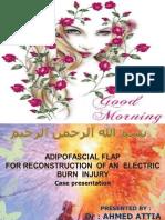 Electric burn case presentation.ppt