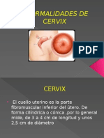 Anormalidades de Cervix