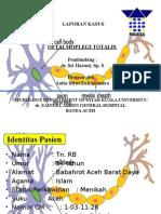 parese nervus okulomotorius preskas saraf