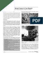 Bilateral Brast Cancer