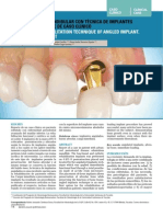Protesis implanto-soportada