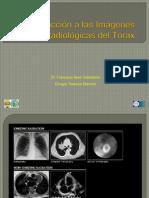 Introducción a las Imágenes Radiológicas del Tórax