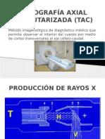 Tomografía Axial Computarizada (Tac)