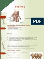 Osteoartrites