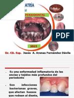 2.- Enfermedad Periodontal