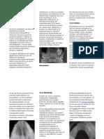Tumores Benignos de Los Maxilares, Torus Palatino y Mandibular (2)