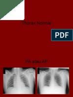 radiologi Thorax Normal