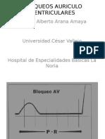BLOQUEOS_AURICULO_VENTRICULARES