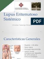lupuseritematososistemico