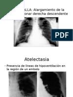 Radiologia Trombo Embolo Pulmonar