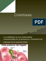 Litiasis Vesicular
