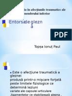 Entorsa de Glezna Topsa Ionut Paul
