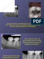 Cracked Tooth Presentation
