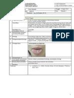 Furred Tongue