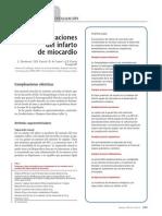 Complicaciones IMA.pdf