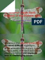 anteriorsingletoothimplantsintheestheticzone-131013093226-phpapp01.pptx