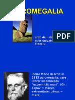 2. Acromegalia
