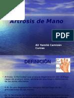Artrosis de Mano