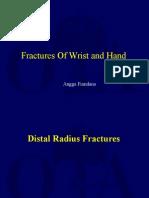 Fracture Around Wrist